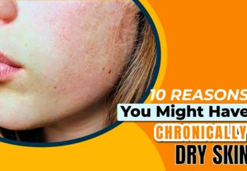 10 Reasons You Might Have Chronically Dry Skin